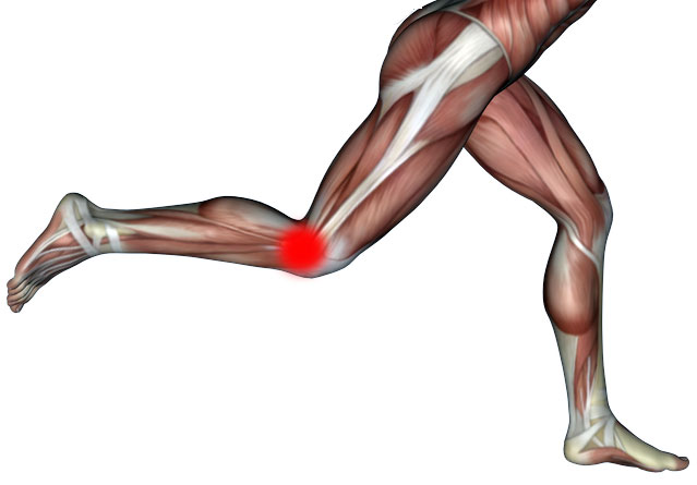 Iliotibial Band Syndrome – Fascial Fitness Australia
